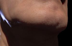 Chin close-up